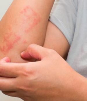 Psoriasis: un mal que estigmatiza