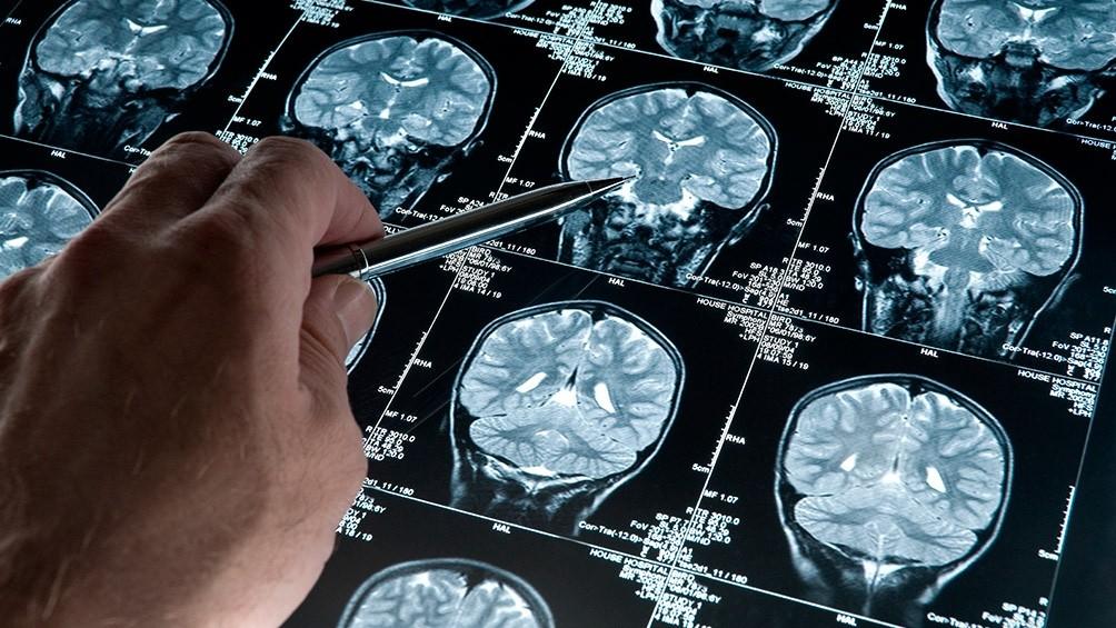 Especialistas explicarán cómo abordar el Alzheimer en contexto de pandemia